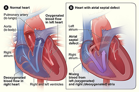 Diagram of heart defect