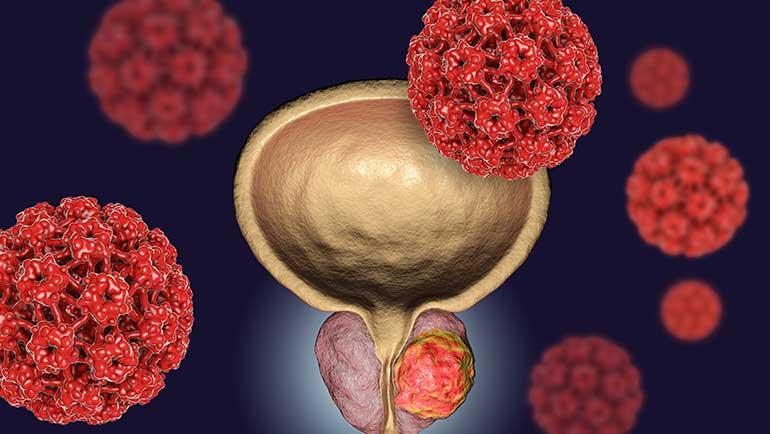 depiction of prostate cancer